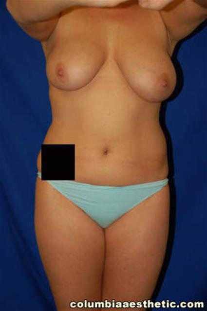 Breast Lift - Case 1 - Before