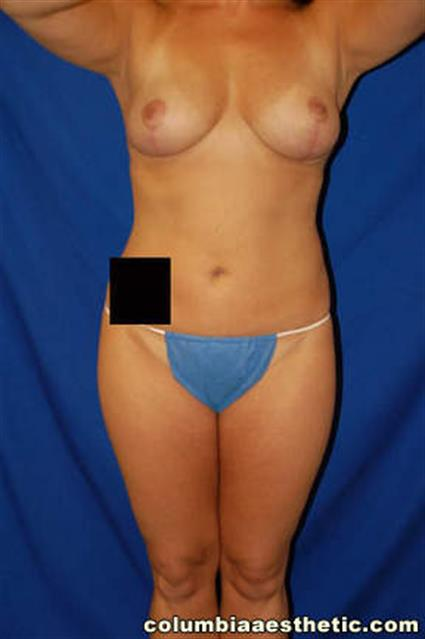 Breast Lift - Case 1 - After