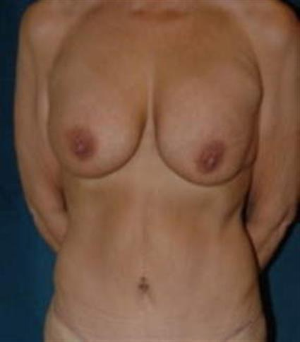 Breast Augmentation - Case 10 - Before