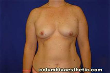 Breast Reconstruction Patient Photo - Case 14 - before view-
