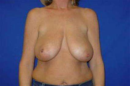 Breast Reduction - Case 15 - Before