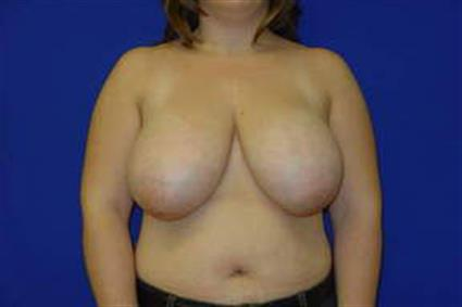 Breast Reduction - Case 16 - Before