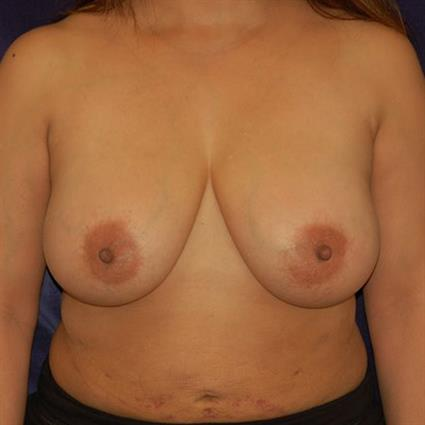 Breast Reduction - Case 23 - Before