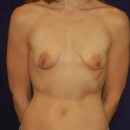 Breast Augmentation Patient Photo - Case 25 - before view-