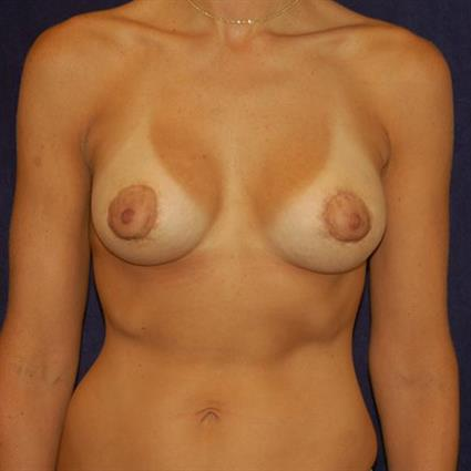 Breast Augmentation Patient Photo - Case 25 - after view