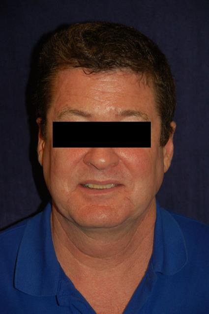 Liposuction - Case 27 - After