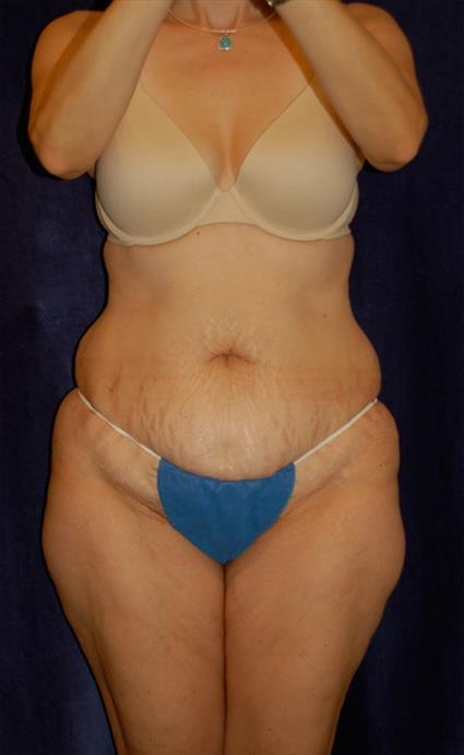 Abdominoplasty (Tummy Tuck) - Case 36 - Before
