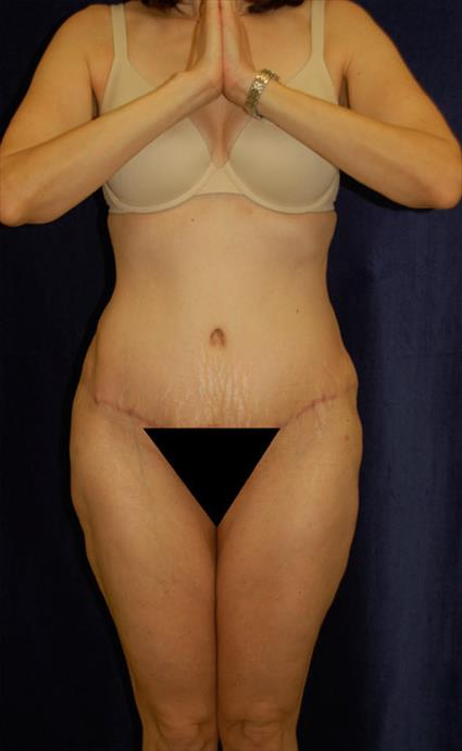 Abdominoplasty (Tummy Tuck) - Case 36 - After