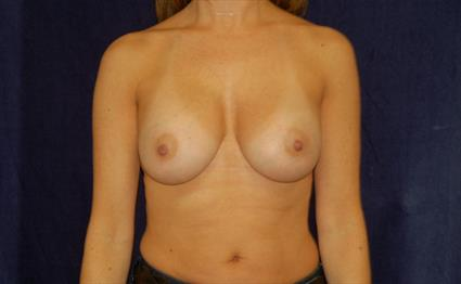 Breast Augmentation - Case 38 - After