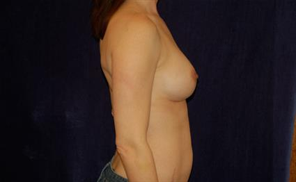 Breast Augmentation Patient Photo - Case 39 - after view-1