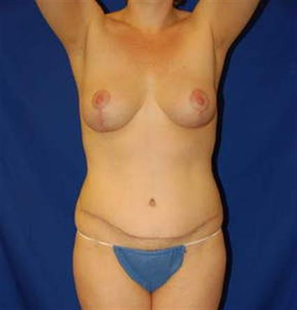 Abdominoplasty (Tummy Tuck) - Case 4 - After