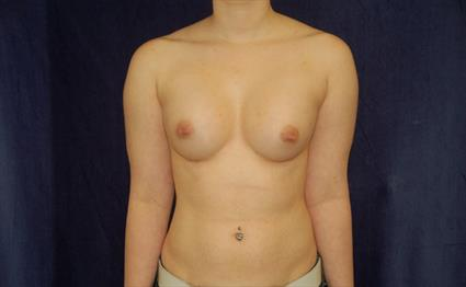 Breast Augmentation - Case 41 - After