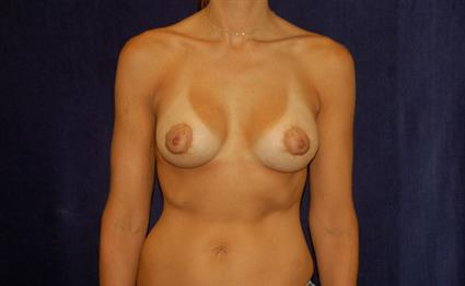 Breast Augmentation - Case 49 - After