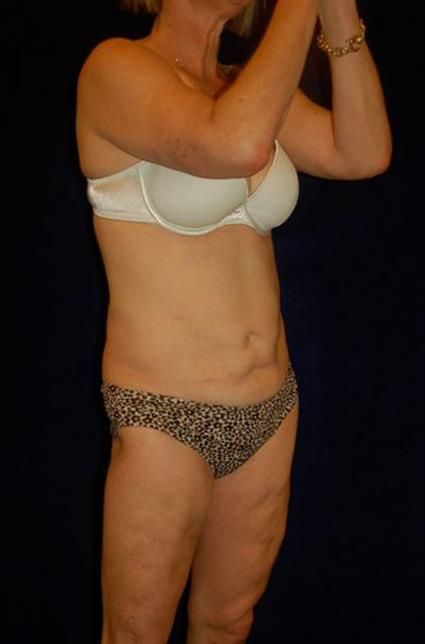 CoolSculpting Patient Photo - Case 50 - after view-1