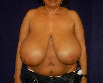 Breast Reduction - Case 53 - Before