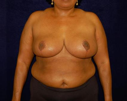 Breast Reduction - Case 53 - After