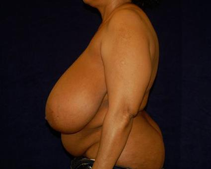 Breast Reduction Patient Photo - Case 53 - before view-2