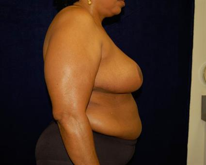 Breast Reduction Patient Photo - Case 53 - after view-3