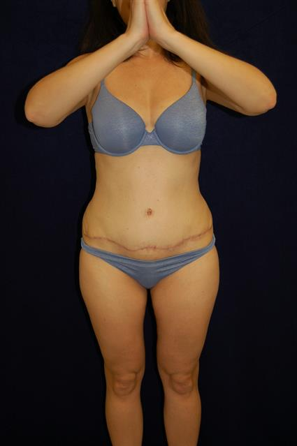 Abdominoplasty (Tummy Tuck) - Case 58 - After