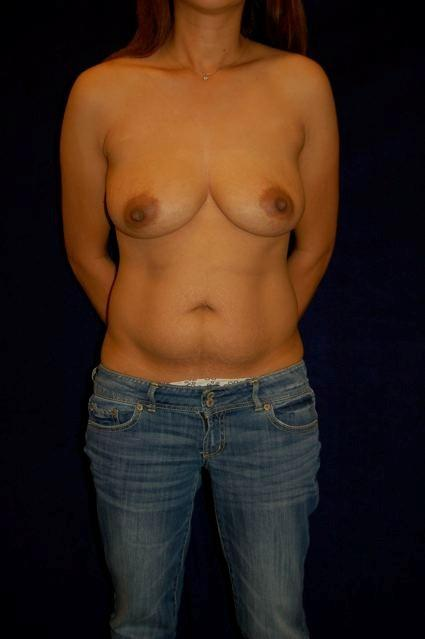 Abdominoplasty (Tummy Tuck) - Case 59 - Before