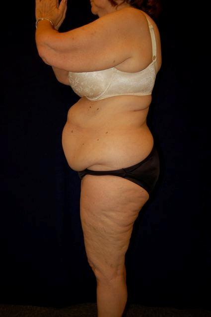 Abdominoplasty (Tummy Tuck) Patient Photo - Case 60 - before view-