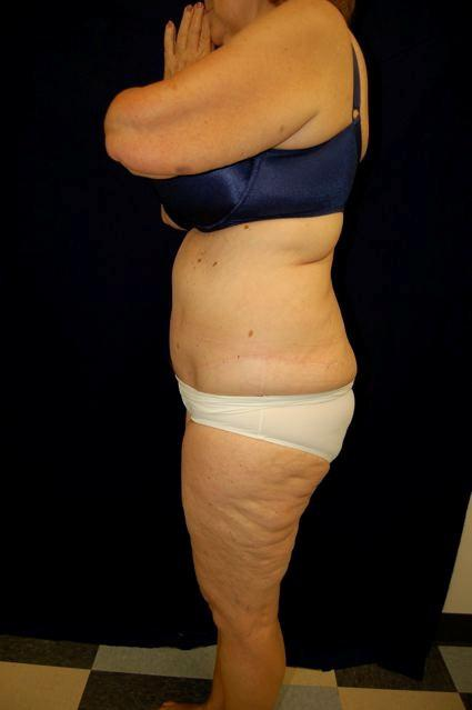 Abdominoplasty (Tummy Tuck) Patient Photo - Case 60 - after view