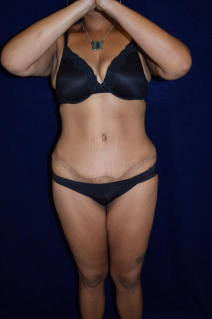 Abdominoplasty (Tummy Tuck) - Case 65 - After