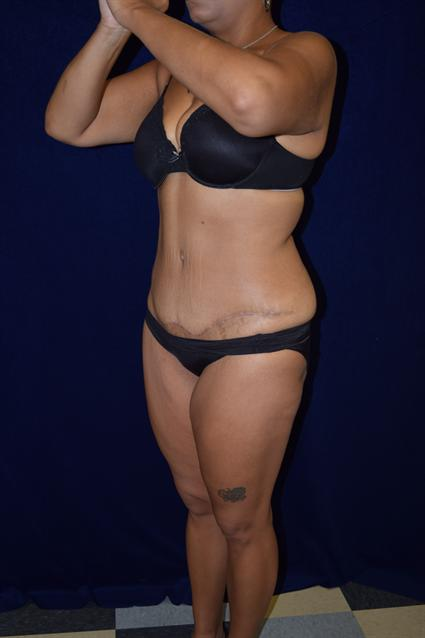 Abdominoplasty (Tummy Tuck) Patient Photo - Case 65 - after view-2