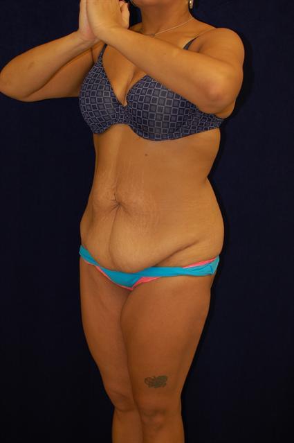 Abdominoplasty (Tummy Tuck) Patient Photo - Case 65 - before view-2