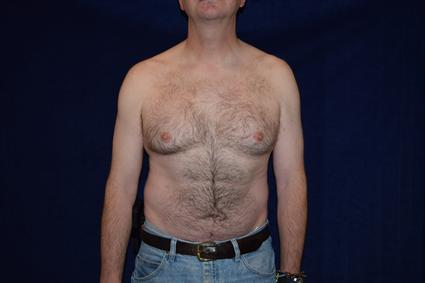 Male Breast Reduction (Gynecomastia) Patient Photo - Case 69 - before view-