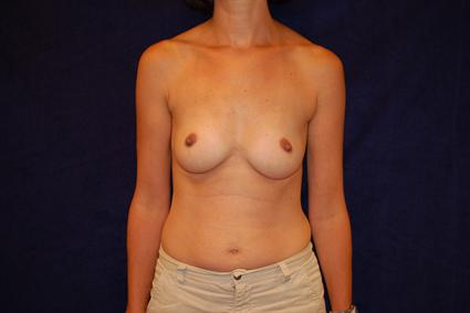 Breast Reconstruction - Case 70 - Before