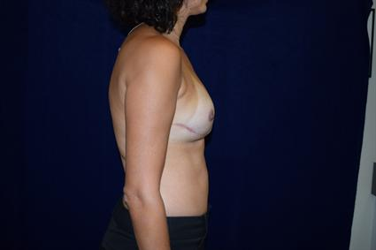Breast Reconstruction Patient Photo - Case 70 - after view-3