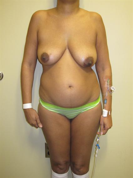 Abdominoplasty (Tummy Tuck) Patient Photo - Case 71 - before view-
