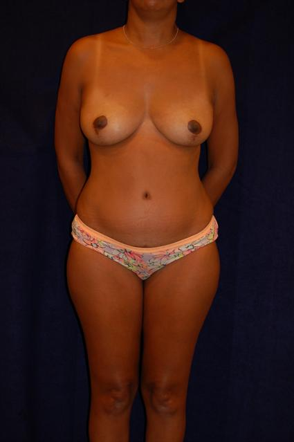 Abdominoplasty (Tummy Tuck) Patient Photo - Case 71 - after view