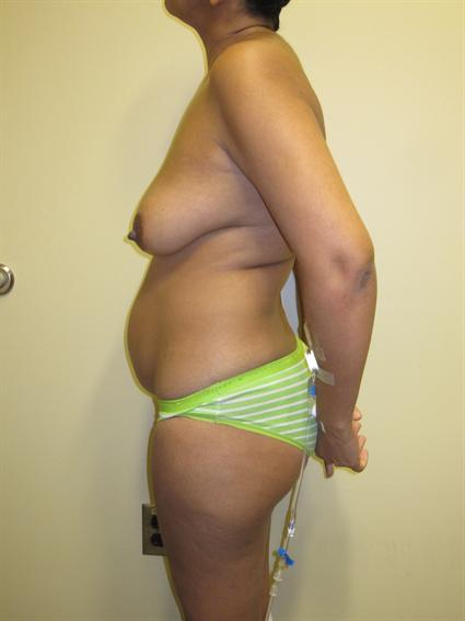 Abdominoplasty (Tummy Tuck) Patient Photo - Case 71 - before view-1