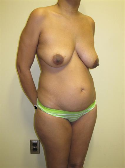 Abdominoplasty (Tummy Tuck) Patient Photo - Case 71 - before view-4