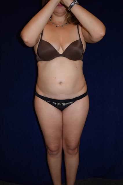 Abdominoplasty (Tummy Tuck) Patient Photo - Case 73 - before view-