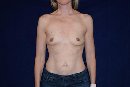 Breast Augmentation - Case 74 - Before