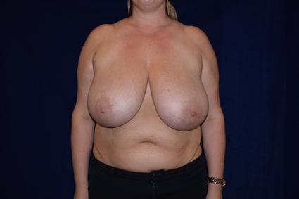 Breast Reduction - Case 76 - Before