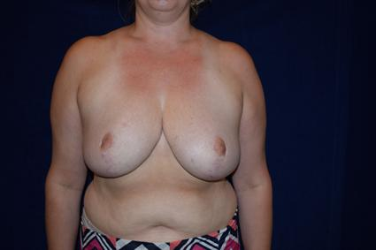 Breast Reduction - Case 76 - After