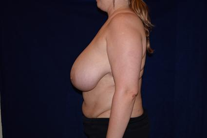 Breast Reduction Patient Photo - Case 76 - before view-1