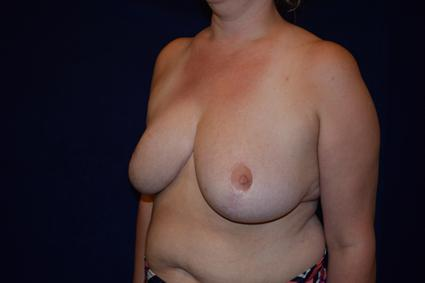 Breast Reduction Patient Photo - Case 76 - after view-2