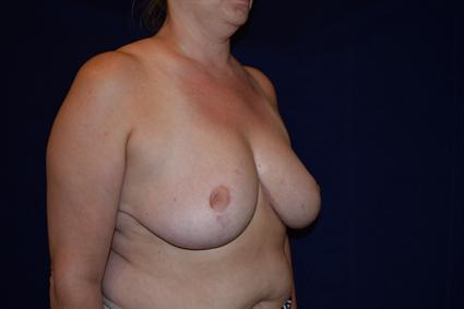 Breast Reduction Patient Photo - Case 76 - after view-4