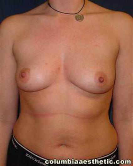 Breast Augmentation - Case 9 - Before